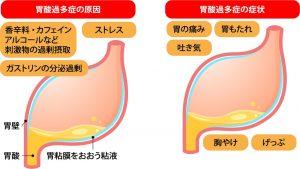 胃酸が出すぎた場合の症状と原因をまとめたイラスト